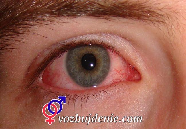 Опухший и покрасневший глаз